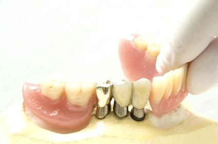 Prostodoncia Mixta