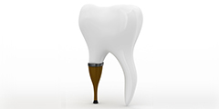 Odontología Prostodoncia