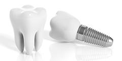Implantes Dentales e Implantoprótesis